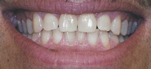 отбеливание зубов luma smile